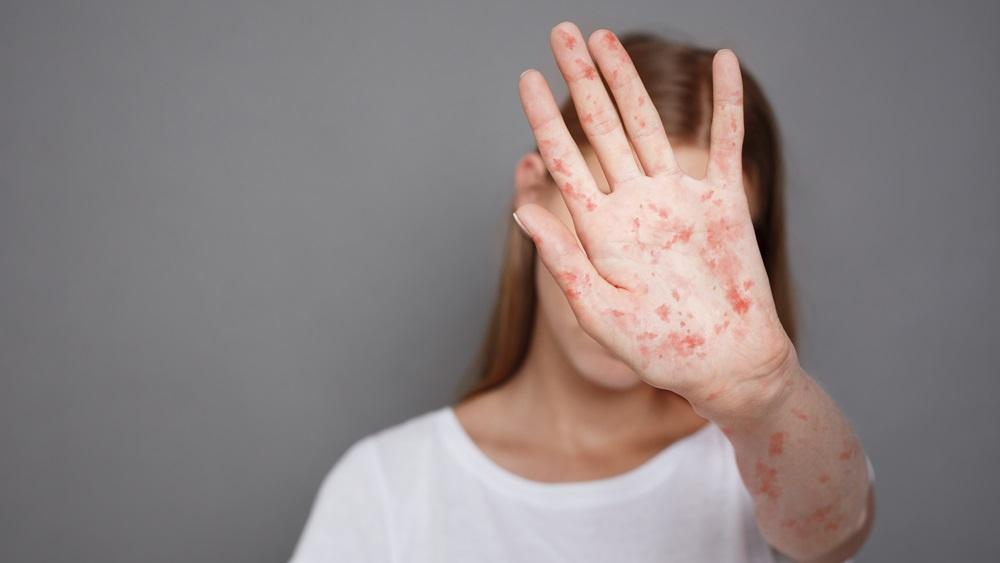 Jak dlouho chrání očkování proti spalničkám