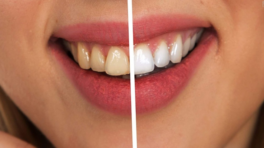 Jak mít bílé zuby
