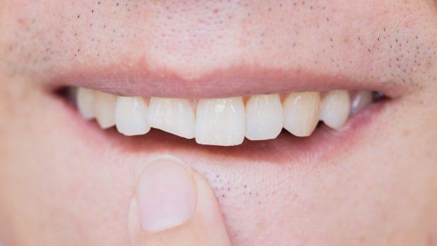 Jak opravit ulomený zub