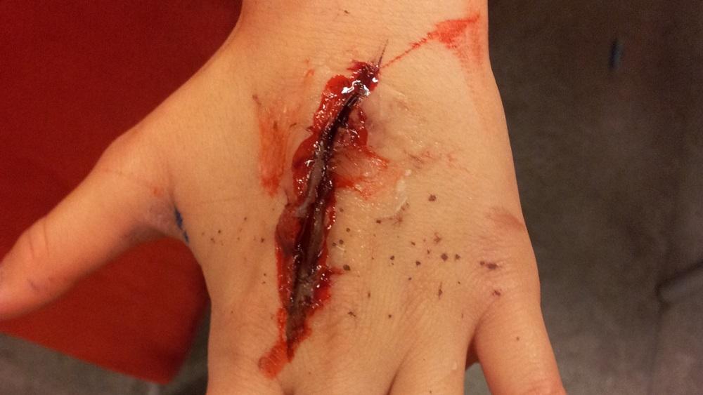 Jak vyrobit umělé zranění
