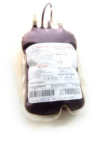 Proč je krev červená